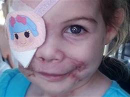 kfc apologizes to scarred girl